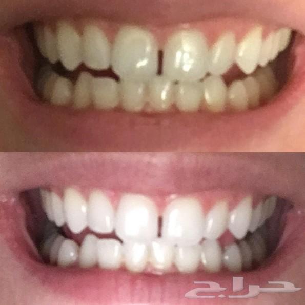 اخر كمية من مسحوق تبييض الاسنان التوصيل مجاني
